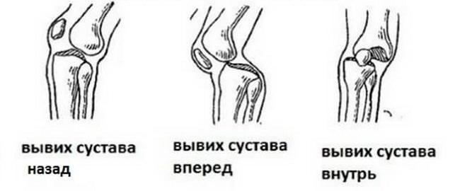 Подвывихи коленного сустава локтевой сустав эластичный бинт