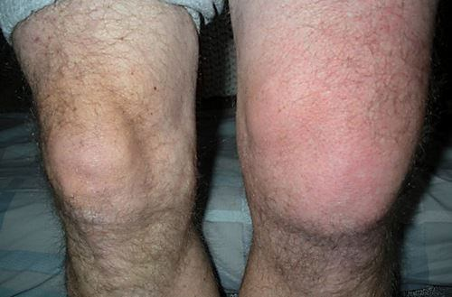 Изображение - Острое воспаление коленного сустава vospalenie-kolena3