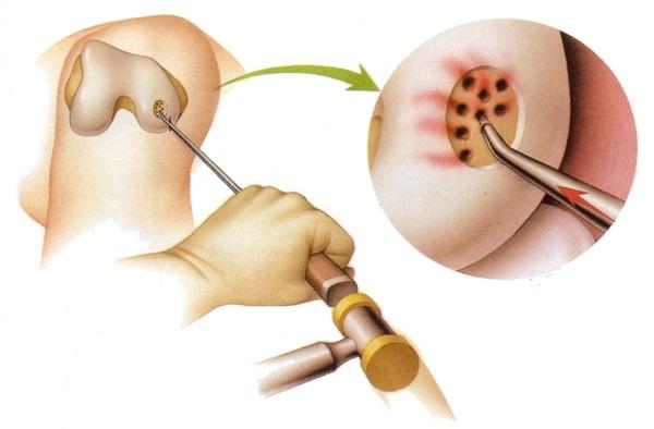 Уколы для наращивания хрящевой ткани суставов