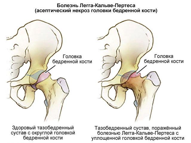Тазобедренный сустав симптомы болезни у детей вправление внутрисуставного хрящевого диска