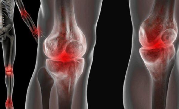 Кровоизлияниев сустав артрит суставов пальцев ног симптомы