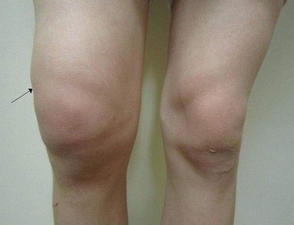 Пункция сустава для удаления выплата гельминты и суставы