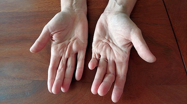 Контрактура суставов кисти последствия после вывиха локтевого сустава