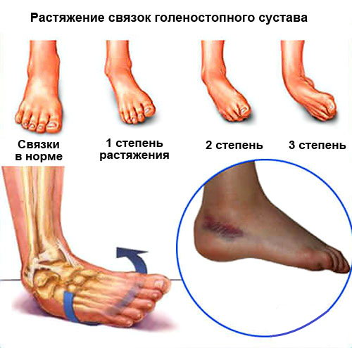 Растяжение связок голеностопного сустава восстановление вторичная протезирование коленного сустава
