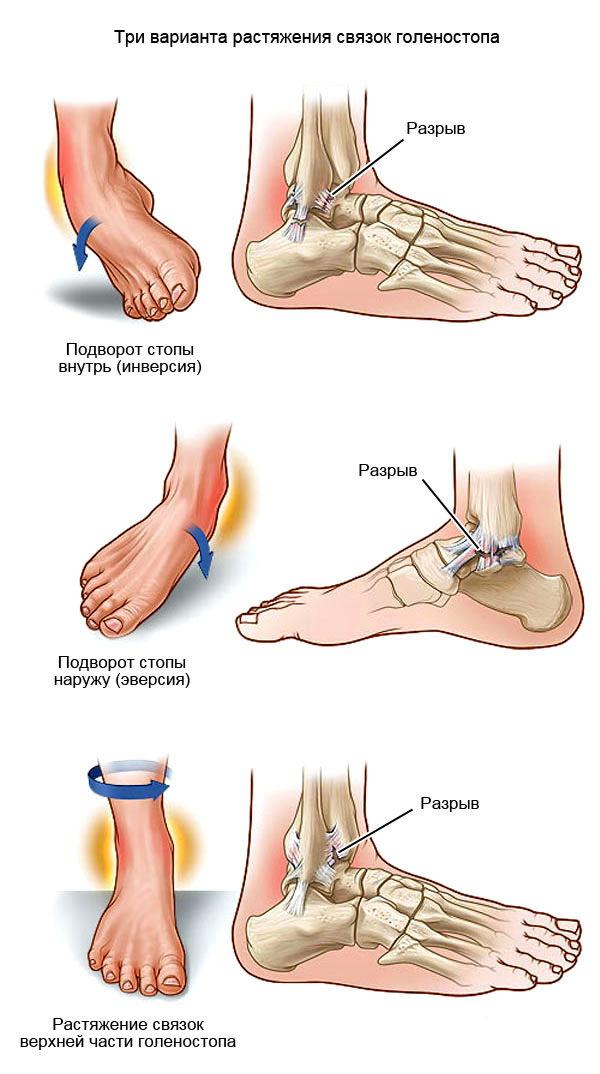 Чем вылечить растяжение связок голеностопного сустава возрастные боли в суставах подростка колени