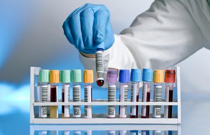Ревматоидный фактор ревмофактор норма у женщин и мужчин описание расшифровки анализа