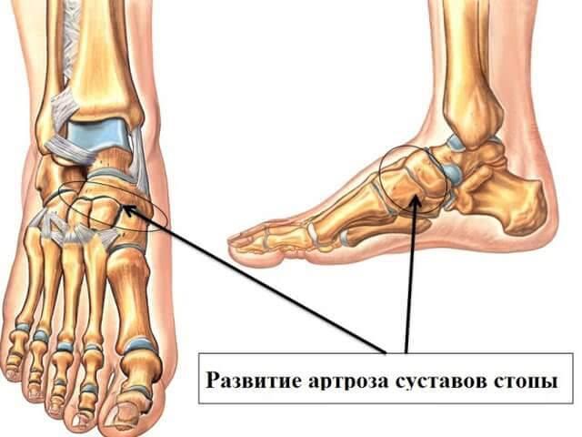 Артрит шопарового сустава хрустят суставы после массажа