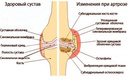 Изображение - Варусный гонартроз коленного сустава gonartroz1