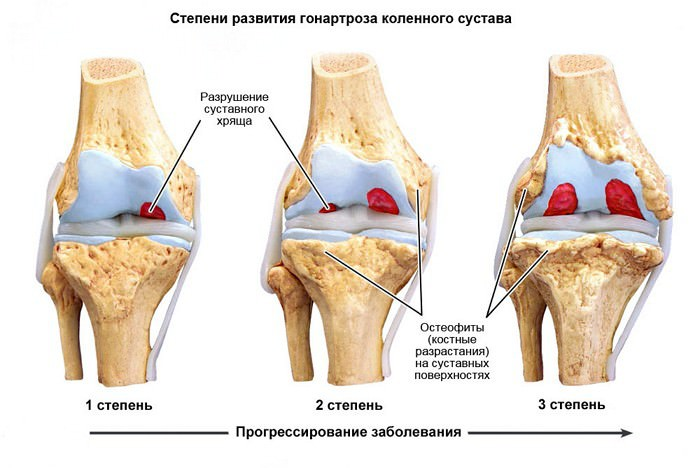 Изображение - Варусный гонартроз коленного сустава gonartroz2