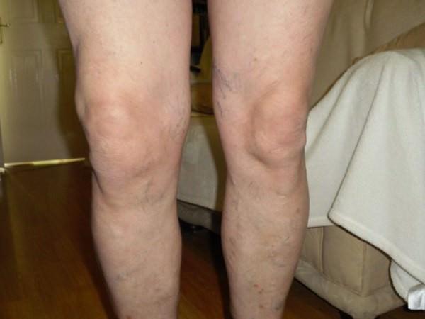 Изображение - Варусный гонартроз коленного сустава gonartroz4