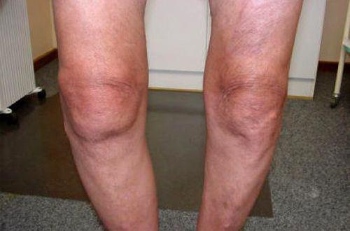Изображение - Варусный гонартроз коленного сустава gonartroz5