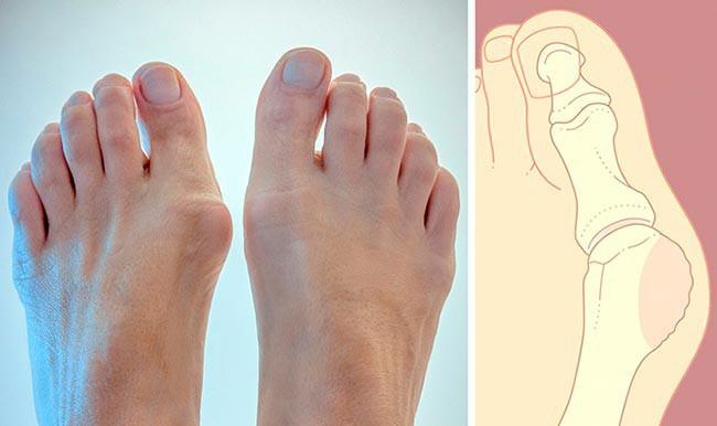 Причины образования и роста косточки на большом пальце