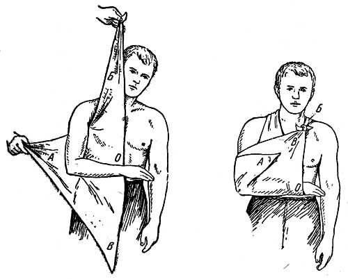 Подвязка при переломе руки своими руками 222