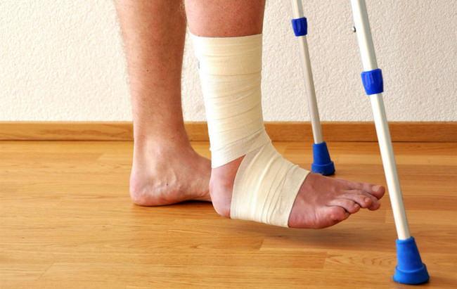 Перелом голеностопа: симптомы, лечение и реабилитация