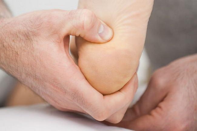 Как вылечить шпору на пятке быстро: способы избавиться, эффективное лечение