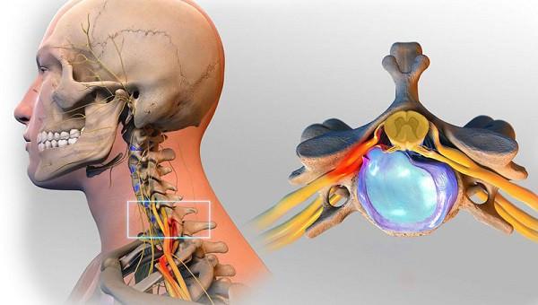 Невралгия шейного отдела позвоночника: симптомы и лечение
