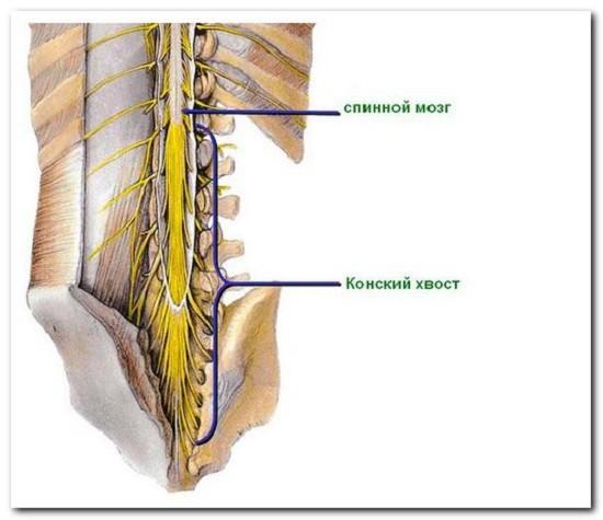 Симптомы и лечение синдрома конского хвоста в пояснице