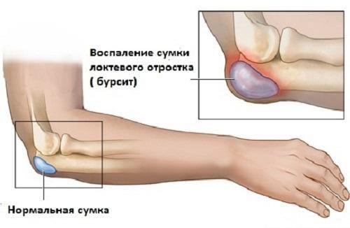 Не разгибается рука в локтевом суставе таблетки софья для суставов