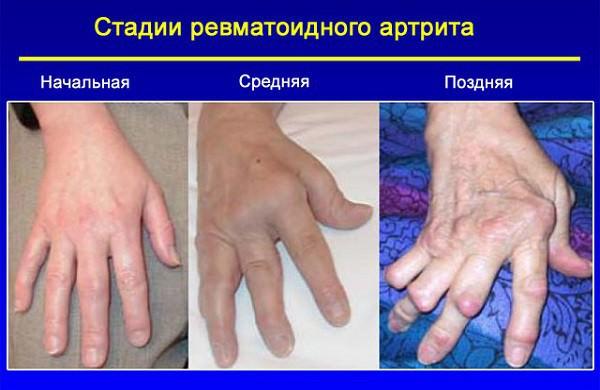 Крутят и болят суставы рук и ног что делать прежде всего