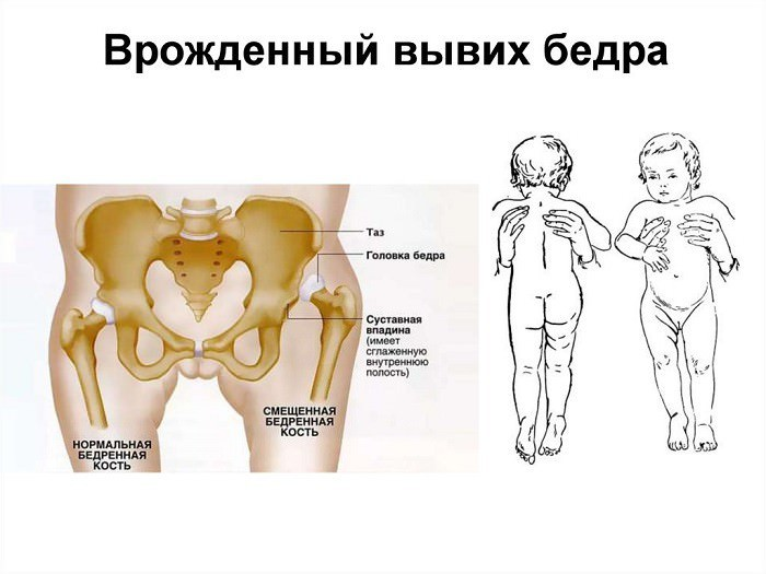 Заболевания при эндопротезировании тбс
