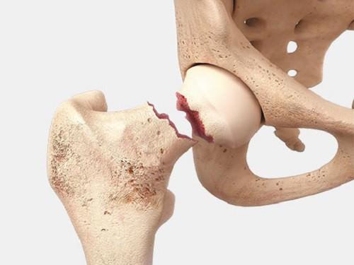 Что такое шейка бедра анатомия и функции в тазобедренном суставе