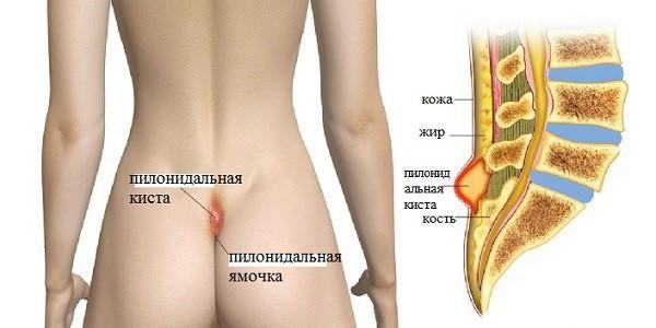 Может ли болеть при геморрое поясница спина крестец лечение