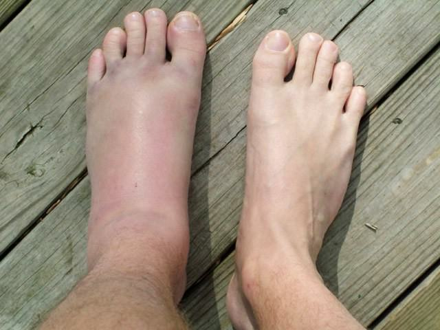 Чем снять отек после перелома пяточной кости thumbnail