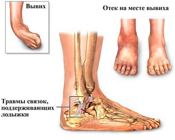 Ушиб сухожилия, малоподвижность сустава опухоль путового сустава лошади