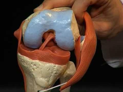 Лигаментит медиальной коллатеральной связки коленного сустава специалиста по заболеваниям суставов