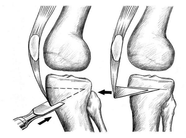 Изображение - Контрактура коленного сустава лечение blobid1524150469878