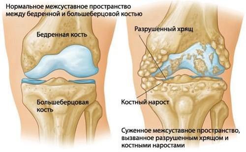 Наросты в коленном суставе упражнения для закачки коленных суставов