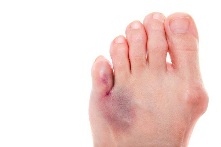 Перелом мизинца на ноге: симптомы, лечение