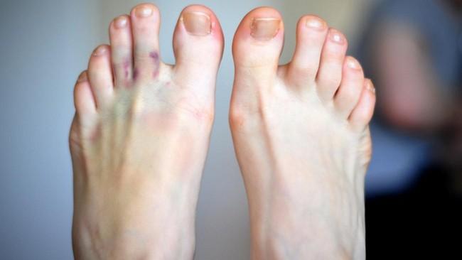 Трещина сустава большого пальца ноги мазь для суставов колена для лошадей