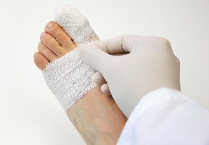 Перелом большого пальца на ноге сколько заживает