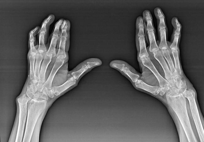 Изображение - Лучезапястный сустав добавочные элементы snimok-deformirovannyh-sustavov-ruki