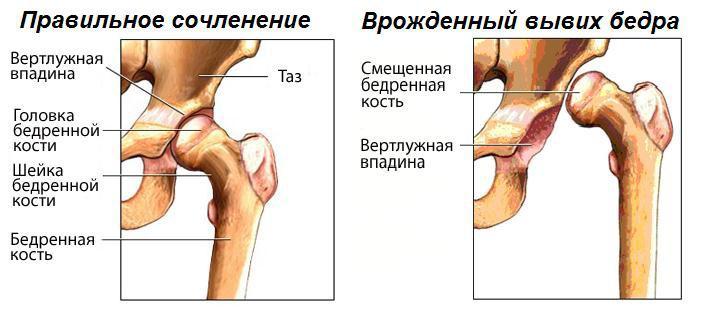 Что такое врожденная дисплазия тазобедренного сустава мышцы производящие движения локтевом суставе