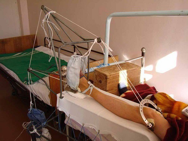 перелом шейки бедра эндопротезирование