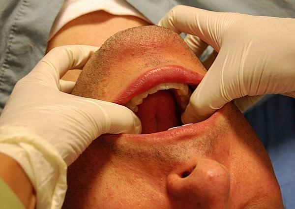 повязка при вывихе челюсти