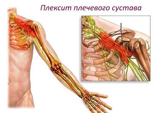 Плексита плечевого сустава хрустят суставы что делать народные средства