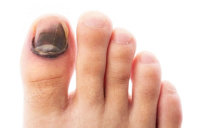 Почернели ногти на ногах причина