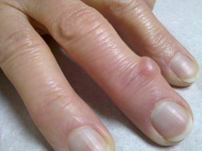 Гигрома пальца руки удалять или нет