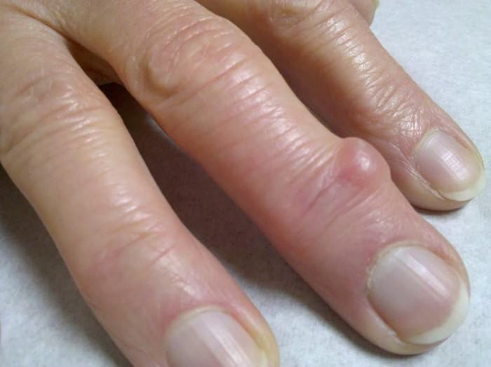 Гигрома на пальце руки фото и лечение