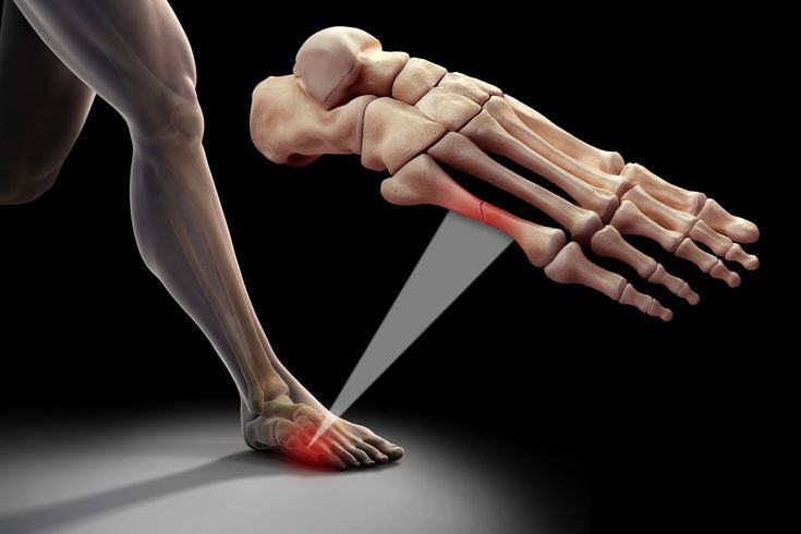 Перелом 2 плюсневой кости стопы лечение. Типы переломов плюсневой кости стопы и причины возникновения трещин