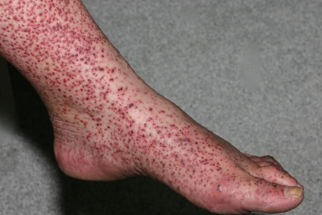 Васкулит на ногах - как лечить