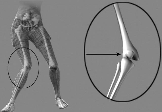 Изображение - Нестабильность коленного сустава код мкб blobid1533930466725