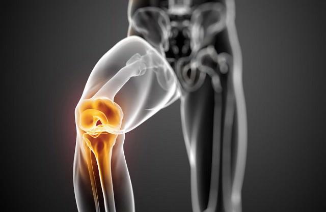 Изображение - Нестабильность коленного сустава код мкб blobid1533930540758