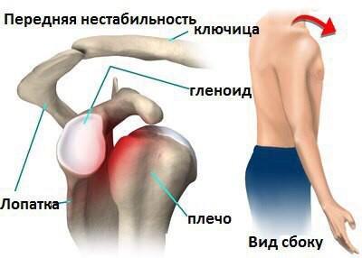 Изображение - Нестабильность плечевого сустава лечение blobid1534373382412