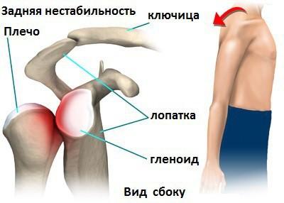 Изображение - Нестабильность плечевого сустава лечение blobid1534373513359