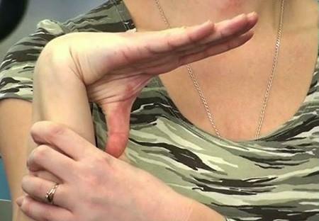 Изображение - Нестабильность плечевого сустава лечение blobid1534373550237