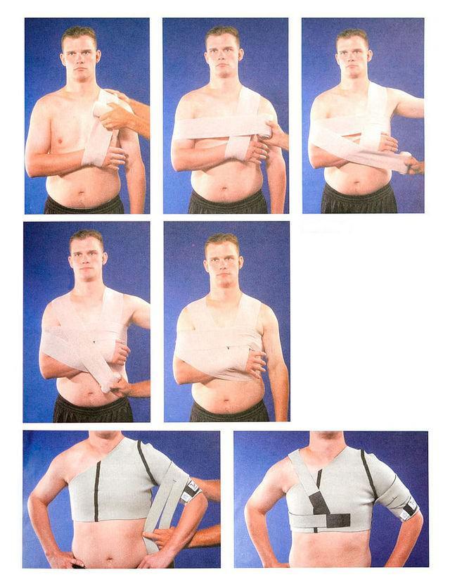 Изображение - Нестабильность плечевого сустава лечение blobid1534373645853